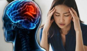Zomig: Once-a-day Pill Could Make You Migraine Free