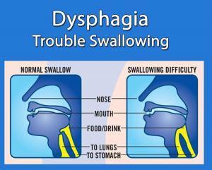Dysphagia: Definition