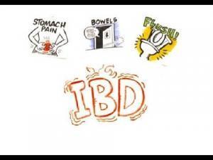 Management/Irritable Bowel Syndrome