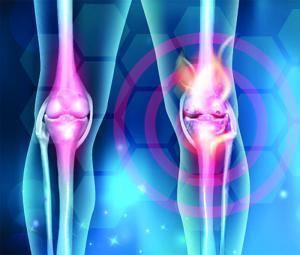 Pathogenesis Of Joint Damage